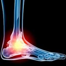 足首の痛み 捻挫