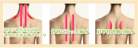 背中の痛み・背中のはり 江別市野幌 整骨院