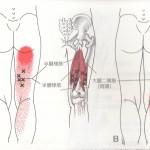 江別市 野幌 鍼灸治療 トリガーポイント