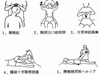 江別市,整骨院,理学的検査法