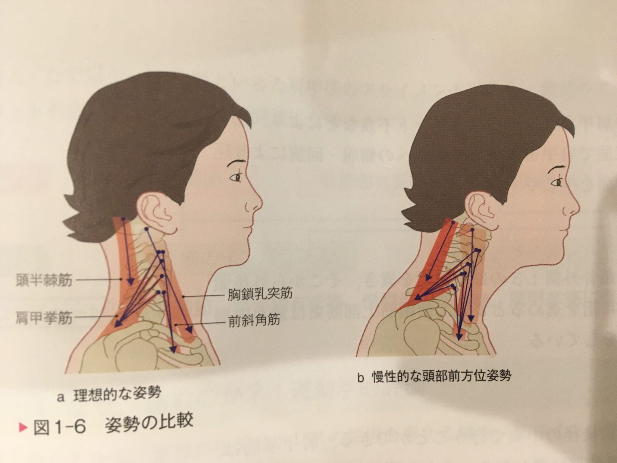江別市,肩こり,首の痛み