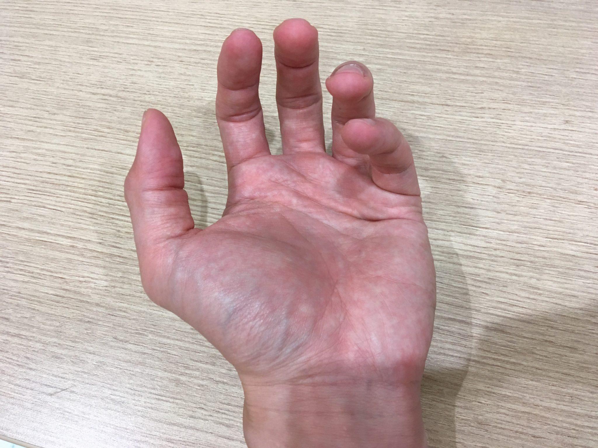 江別腱鞘炎